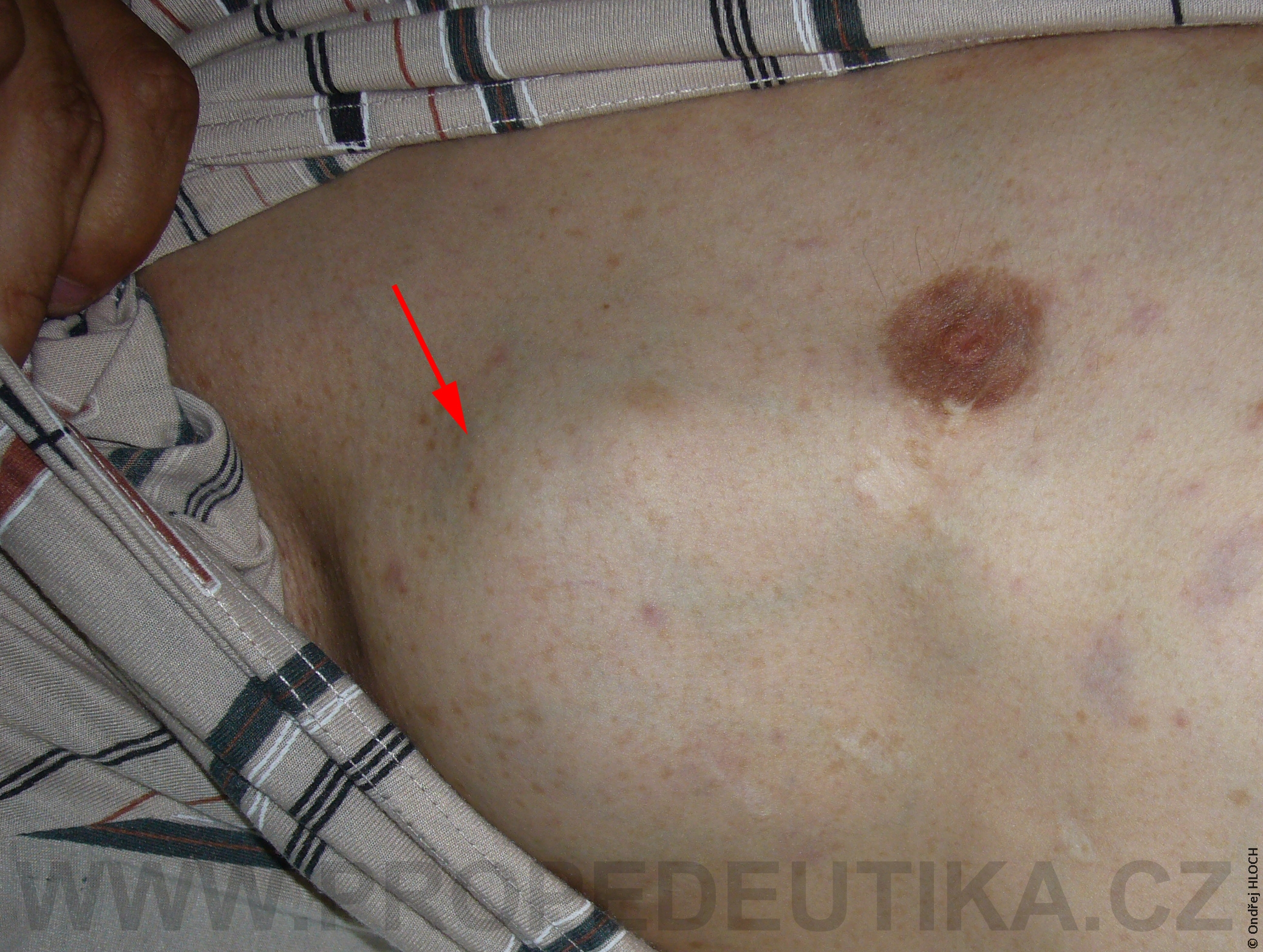 neurofibromatosa1_full