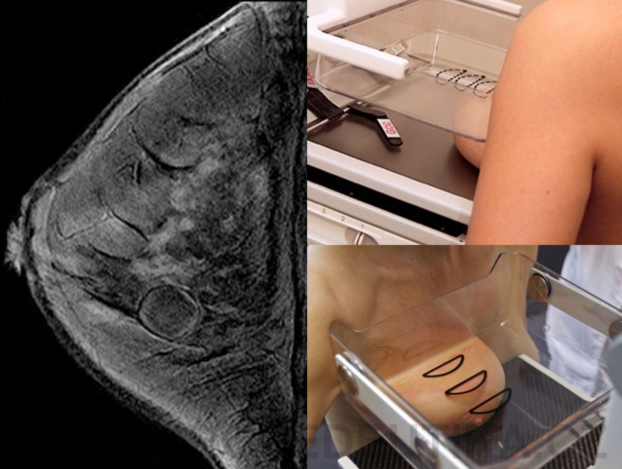 mamograf_full